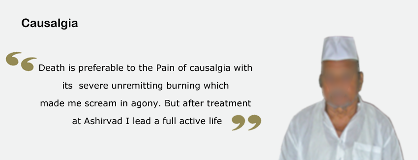 Causalgia Pain Treatment